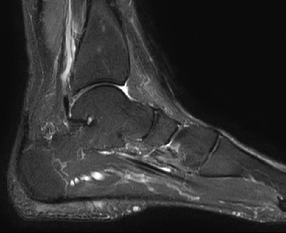 pied qui a besoin de semelles orthopédiques